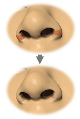 Fig1-1-2.jpg