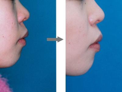 Fig1-3-1.jpg