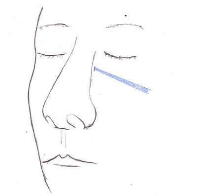 Fig3-3.jpg