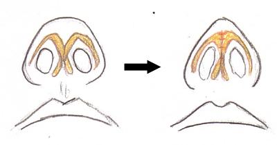 Fig3-5.jpg