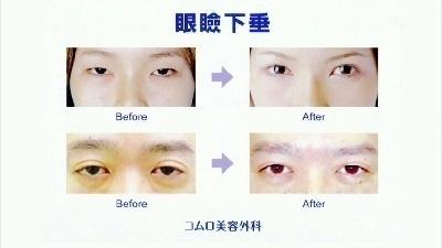 4.眼瞼下垂.jpg