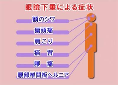 5.眼瞼下垂身体的症状.jpg