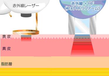 Fig4.jpg